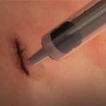 Giornata di dermatologia infantile