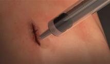 colla chirurgica MeTro