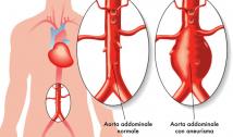 Aneurismi all'aorta addominale, arriva lo stent 3D su misura