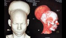 India: rimosso tumore al cervello da 1,87 kg, il più grande al mondo