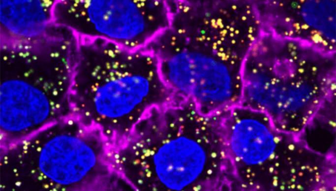 Trovata la firma molecolare dei tumori